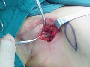 腋下淋巴结在哪-广州医科大学附属第三医院